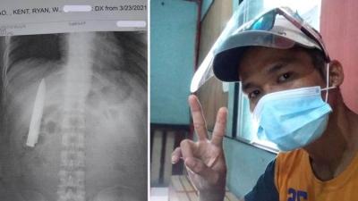 Homem filipino sofrendo de dores no peito fica chocado ao encontrar uma faca