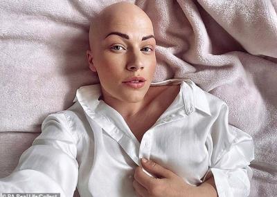 Mulher com alopecia que dormia de peruca finalmente sai sem ela