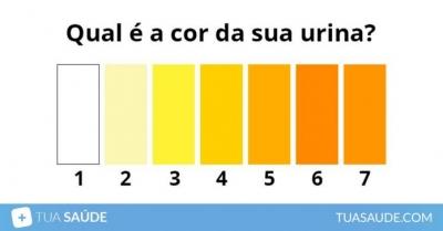 O que significa Urina Escura, Verde, Esbranquiçada, Marrom ou Laranja