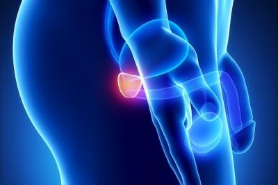 Prostatite – O que é?
