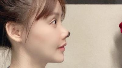 O Tecido na ponta do nariz da atriz chinesa morre após cirurgia plástica malsuce