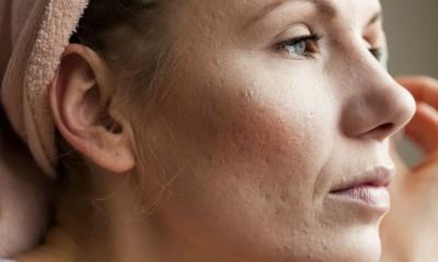 Cicatriz de Acne – Qual é a Melhor Forma de Tirar?