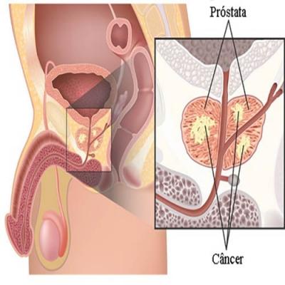 O que é câncer de próstata?