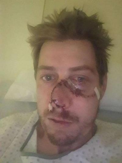 Caçador é atacado por veado e leva 50 pontos no rosto